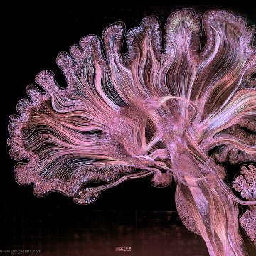 Neuroanatomy   Stream   Factr